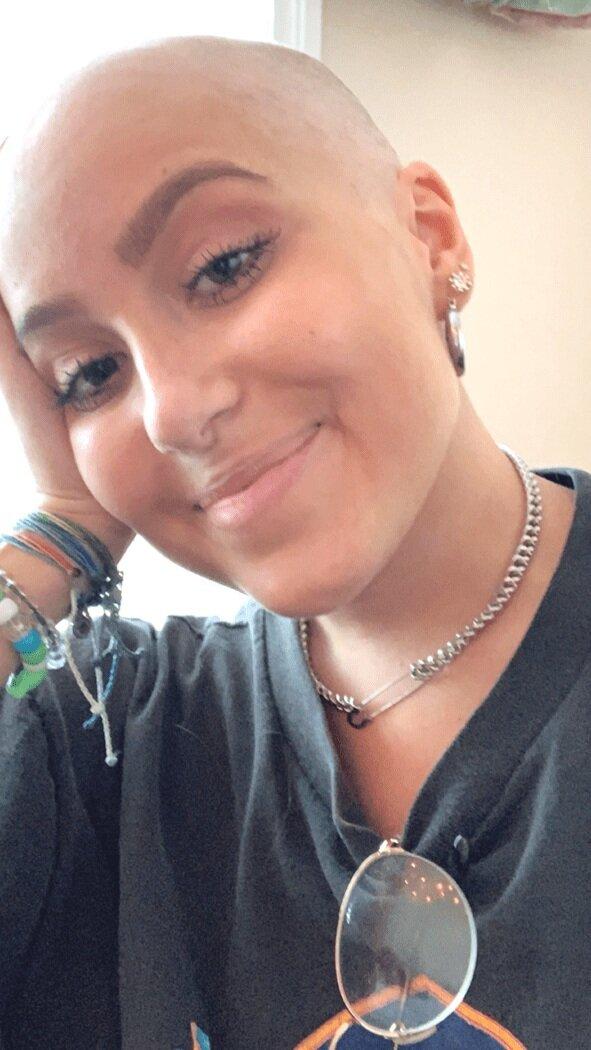 Non-Hodgkin Lymphoma Story: Diffuse Large B-Cell & Burkitt Lymphoma | Erin's Story